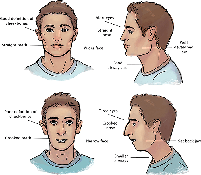 Mouth Breathing Facial Structure Comparison